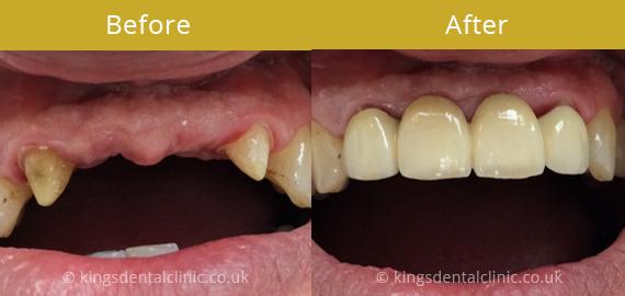 Kings Dental Care