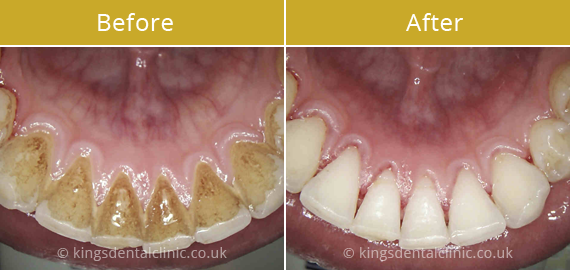 Teeth Whitening Hammersmith Kings Dental Clinic